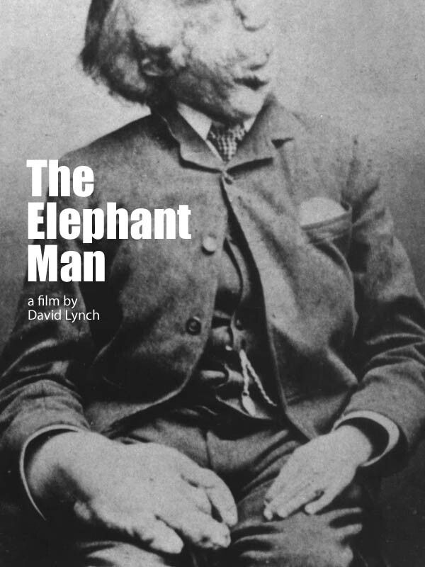 The Elephant Man, 1989 // Directed by David Lynch