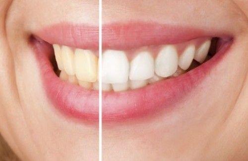 Falls Sie schon länger nicht mehr beim Zahnarzt waren, schon seit Jahren rauchen, viel Tee oder Kaffee oder andere dunkle Getränke trinken, sind Ihre Zähne vielleicht nicht mehr schön weiß, sondern gelblich, was unattraktiv ist und das schöne Lächeln vermiesen kann.