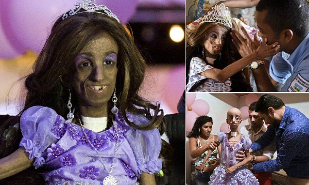 Colombian teen surpasses her 13-year life expectancy to celebrate 15th