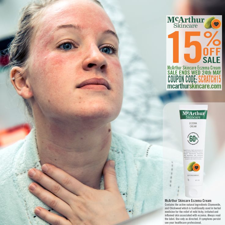 Save 15% OFF - Eczema Cream  McArthur Skincare's Eczema Cream is a cream using the natural active ingredients Chamomile, and Chickweed which is traditionally used in herbal medicine for the relief of mild itchy, irritated and inflamed skin associated with eczema. Listed on the Australian Register of Therapeutic Goods. Free from petrochemicals, parabens or added sulphates. Contains natural active ingredients and is Australian Made.  Read More: http://mcarthurskincare.com/news/may-18-2017/ Use…