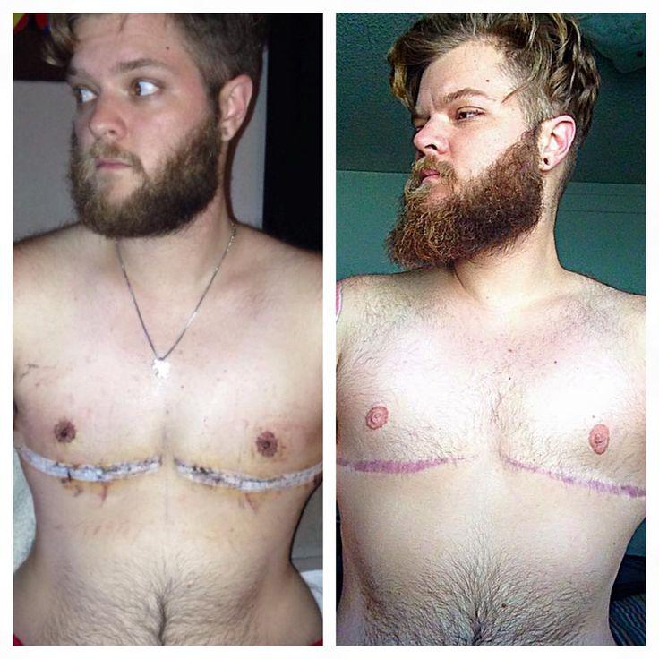 post surgery transgenders