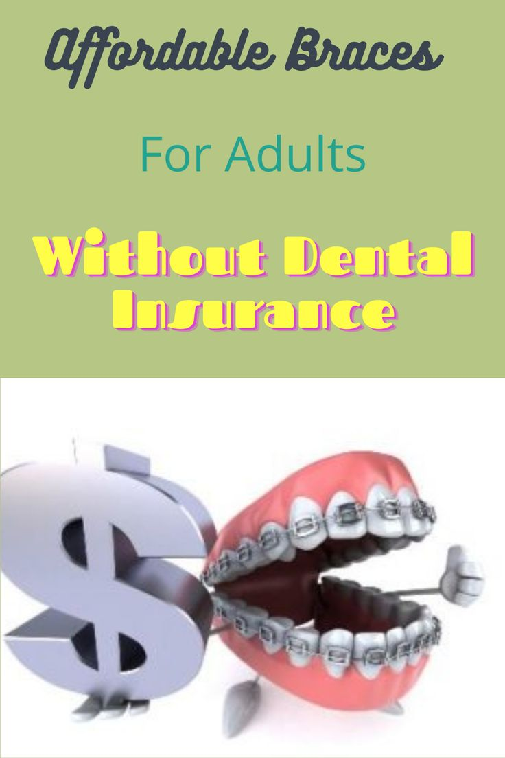 Affordable braces for adults without dental insurance in