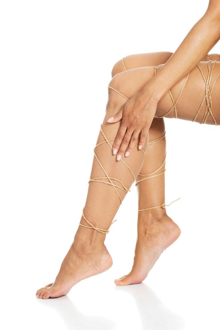 usuwanie żylaków na nogach