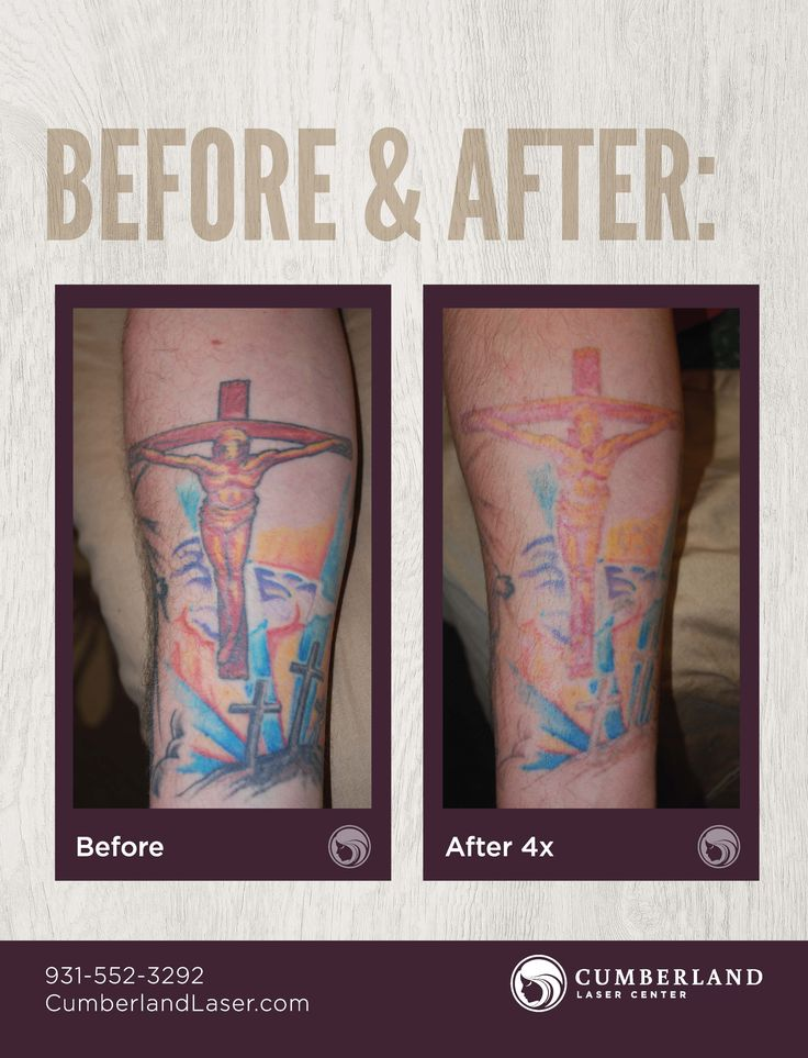 how much does cost to remove a tattoo