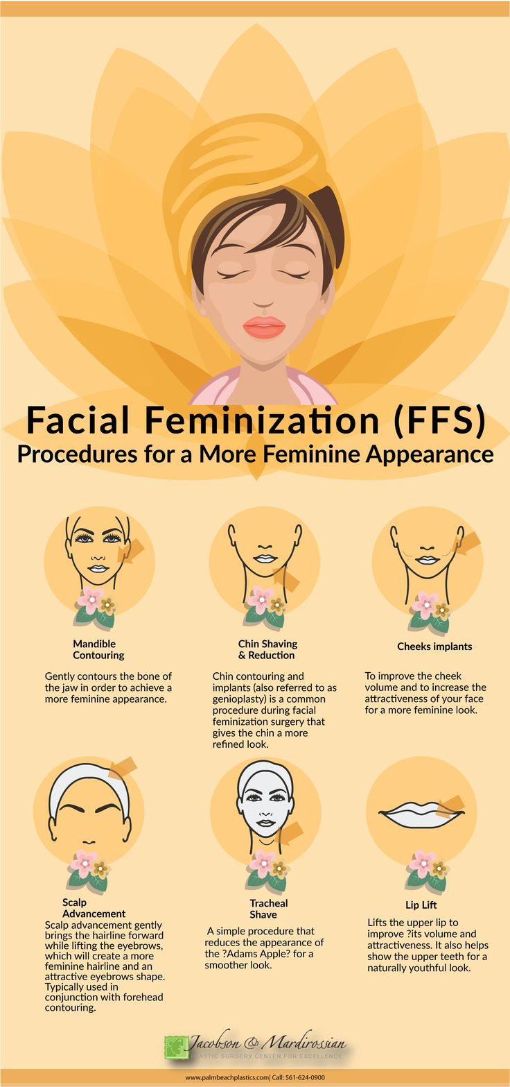 An infographic discussing various facial feminization surgery (FFS) treatments and procedures for a more feminine look.