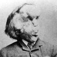 Image result for Joseph Merrick