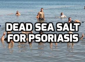 The healing power of Dead Sea salt and black mud for psoriasis