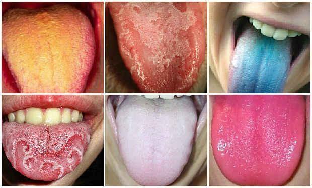 El color de tu lengua revela tu estado de salud   Sentirse bien es facilisimo.com