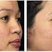 Laser acne scar treatment    how to get rid of acne scars
