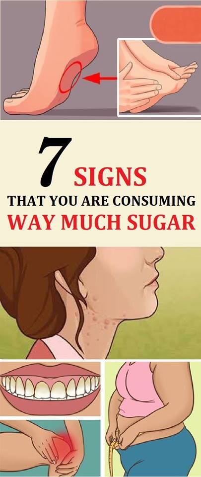 Sugar is highly addictive and we can all agree that its taste is just amazing, but on the other hand we also know that we need to stay away from it since it can be detrimental for the health. Here are 7 signs that warn you that you are eating too much sugar: