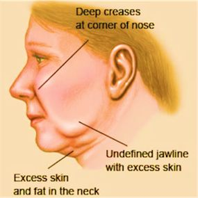 Tired of look older? Try the mini #facelift surgery for a miraculous result.