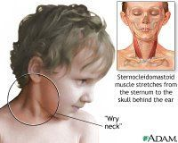 wake up with severe neck pain? This is Why... causes, treatment, and a great explanation