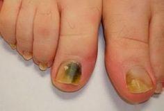 Грибок ногтей на ногах — это заболевание, которым страдают и мужчины, и женщины, причем встречается оно у людей всех возрастов. Одна моя хорошая знакомая недавно приехала с отдыха,...
