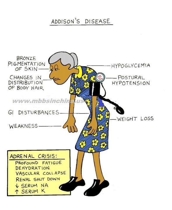 Signs of addisonian crisis