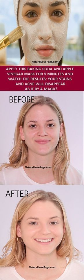 APPLY THIS BAKING SODA AND APPLE VINEGAR MASK FOR 5 MINUTES AND WATCH THE RESULTS: YOUR STAINS AND ACNE WILL DISAPPEAR AS IF BY A MAGIC! (Beauty Products Face Masks)