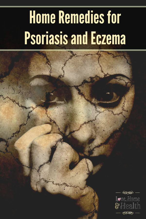 Psoriasis, Eczema, Home Remedies  Home remedies that WORK!  I use them myself for psoriasis outbreaks.  Home Remedies for Psoriasis and Eczema www.lovehomeandhealth.com