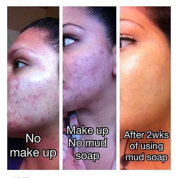 Seacret mud soap before and after says it all!  http://www.seacretglobalmember.com/