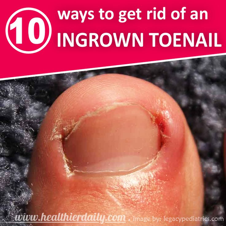 112 Best Foot Remedies Images On Pinterest Beauty Tips