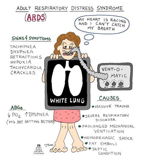 adenosinetriesphosphate:    Acute Respiratory Distress Syndrome (ARDS)