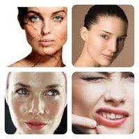 Solusi Kulit Sehat: Jenis-jenis Kulit Wajah
