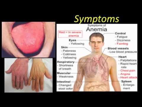 pernicious anemia youtube home remedies pinterest