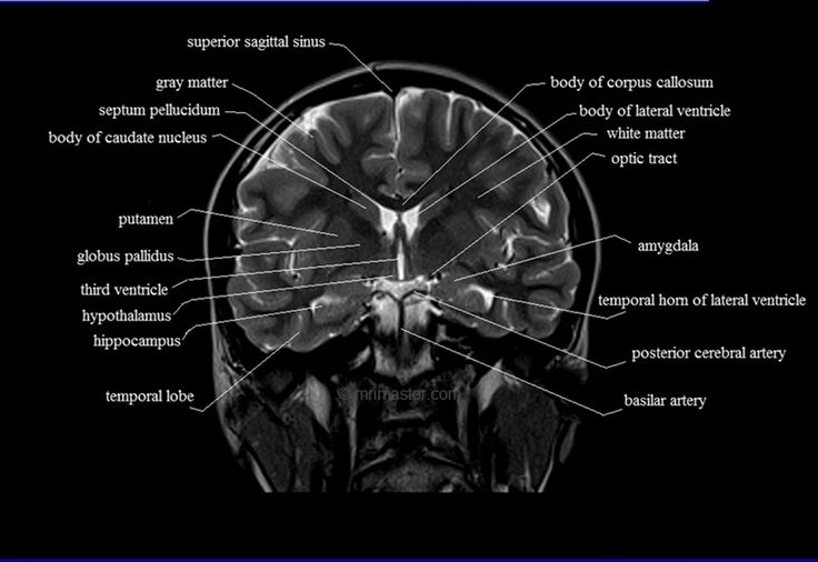 brain anatomy | MRI coronal brain anatomy | free MRI cross sectional anatomy |