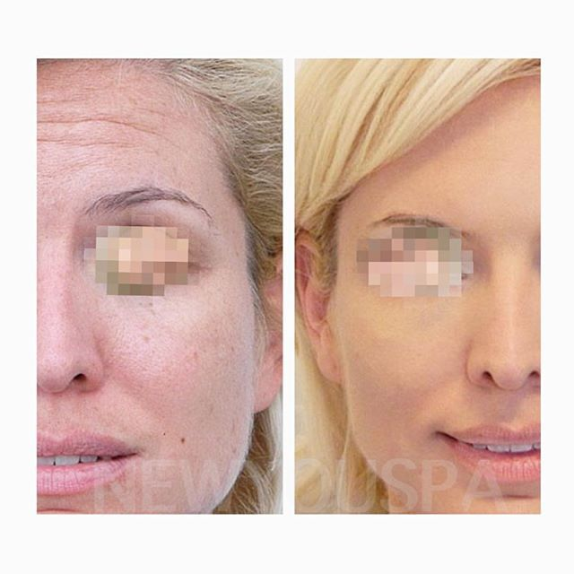 :sparkles::sparkles:Amazing #BeforeandAfter of our Collagen Injections. :sparkles::sparkles: Today only you can get the same deal and get BOTOX for FREE! :tada::ribbon::tada::kiss: Don't forget about the INSANE VALENTINE'S DAY DEALS happening exclusively