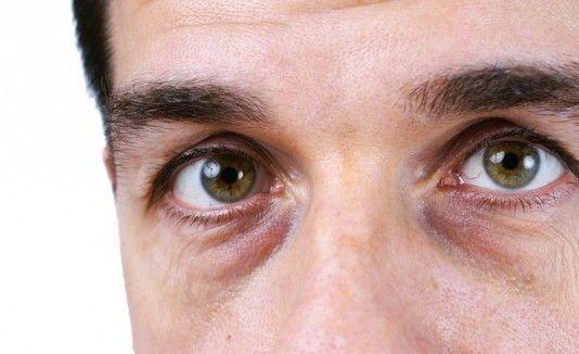 4 formas de eliminar las ojeras