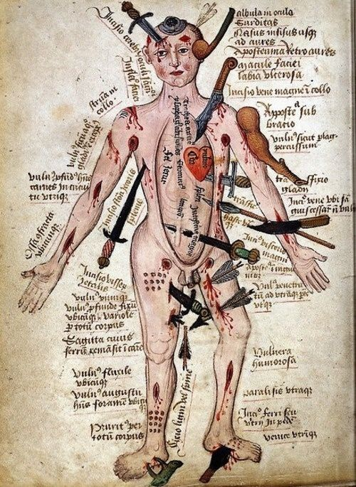 """Medieval Wound Man, """"…a compendium of all the injuries that a body might sustain."""""""