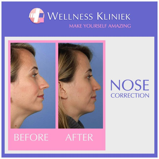 The shape of the nose is an important facial feature. A small correction often results in a considerable improvement in one's appearance. #WellnessKliniek #Rhinoplasty #NoseCorrection #Results