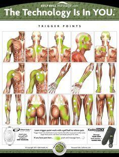 algunos, puntos gatillos.Muestra los puntos de activación (indicadas con una bola de golf), así como sus zonas de dolor referido (que se muestran en el verde). Si usted tiene dolor en la zona verde, empuje y masaje la zona donde la pelota de golf esta.
