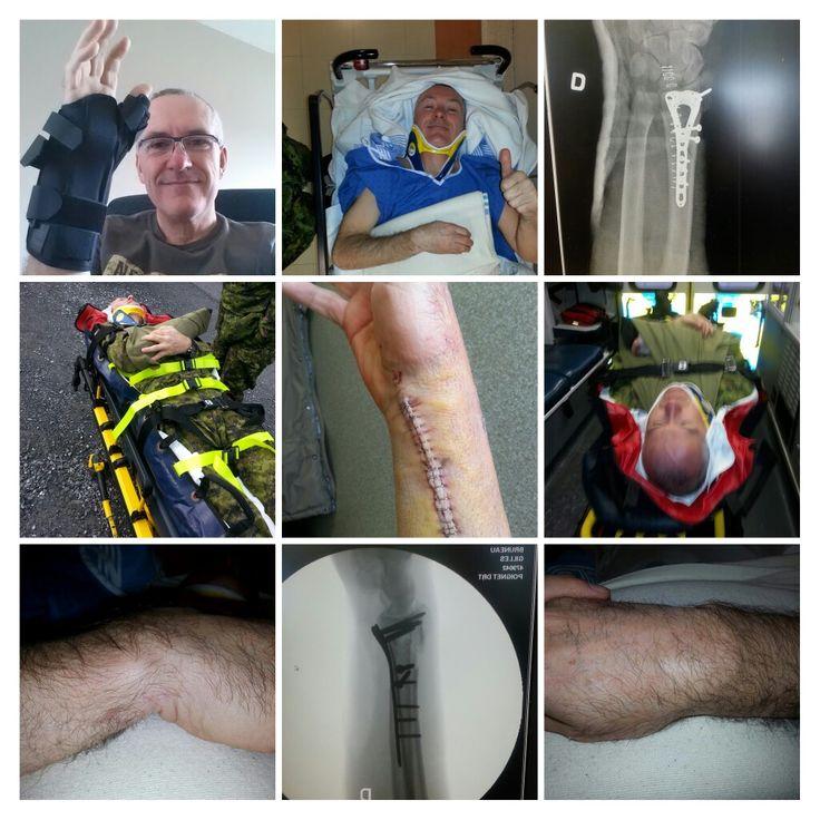 Fracture poignet droit/ 8 Avril 16