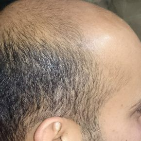 Focus hair transplant centre is one of the best clinic in india for hair surgery. Our doctors are highly experience in that feild. In hair surgery, doctor  use small tools for extraction of hairs and implant them in bald portion of the head. Visit our website for excess details.