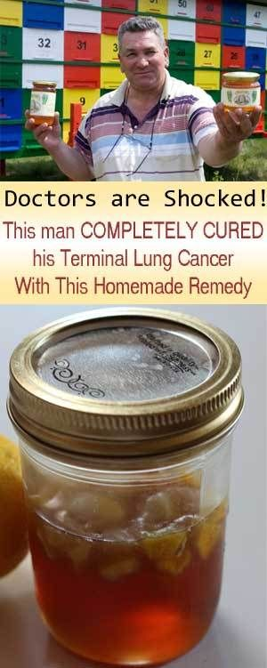 honey and ginger for cancer  Doctors Are Speechless: Man Completely Cures His Terminal Lung Cancer With This Natural Remedy