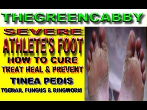 SEVERE ATHLETE'S FOOT  HOW TO CURE ATHLETES FOOT TREAT HEAL & PREVENT T