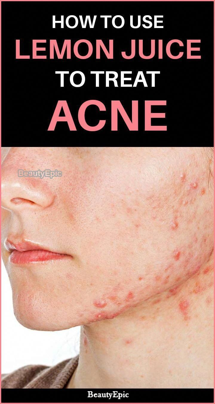 How To Use Lemon Juice To Treat Acne How to treat acne