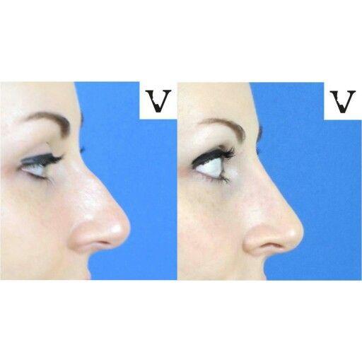 #boston #rhinoplasty #nosejob #alternative #injection #expert #newton #asymmetry #correction #reconstruction #hiv #lips #eyes #beauty #taste #youth #young #proportion #selfesteem #juvederm #belotero #merz #galderma #allergan #botox #sculptra #chin #augmentation #jaw #reduction #face #slimming #visagesculpture #mashabanar #restylane #radiesse #botox #sculptra #chin #augmentation #jaw #reduction #fillers #radiesse #juvederm #belotero