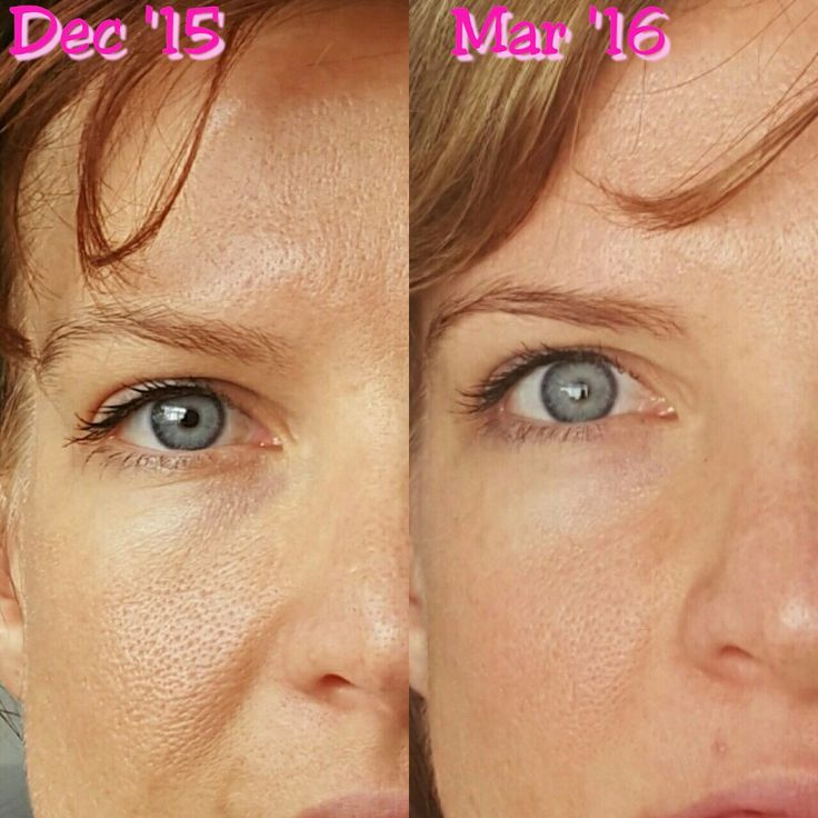 Jeunesse - before and after. Pores smaller. Lines not as deep