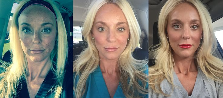 Wendy documented her last micro needling treatment to give you an idea of what you look like afterwards. This is the day of the procedure, 2 days after and 4 days after. You can see she looks great by day 4 and you are allowed to wear mineral makeup while you are healing!
