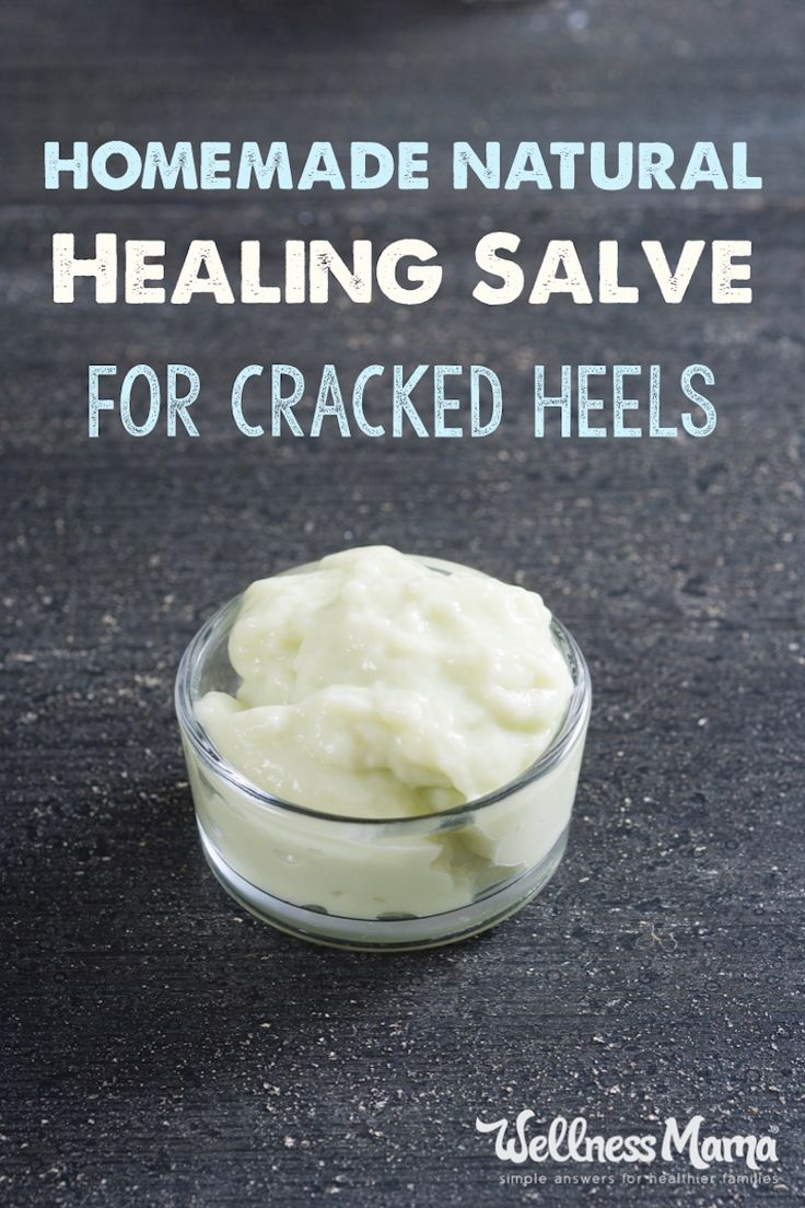 Cracked heels can be frustrating and painful. These homemade remedies like detoxifying foot soaks, supplements and DIY salve can help cracked heels.