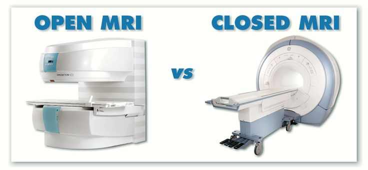An open MRI machine with Burbank MRI can diagnose a stroke.