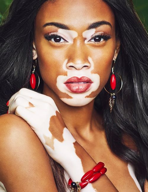19 Times This Model With A Skin Condition Gave Us Life
