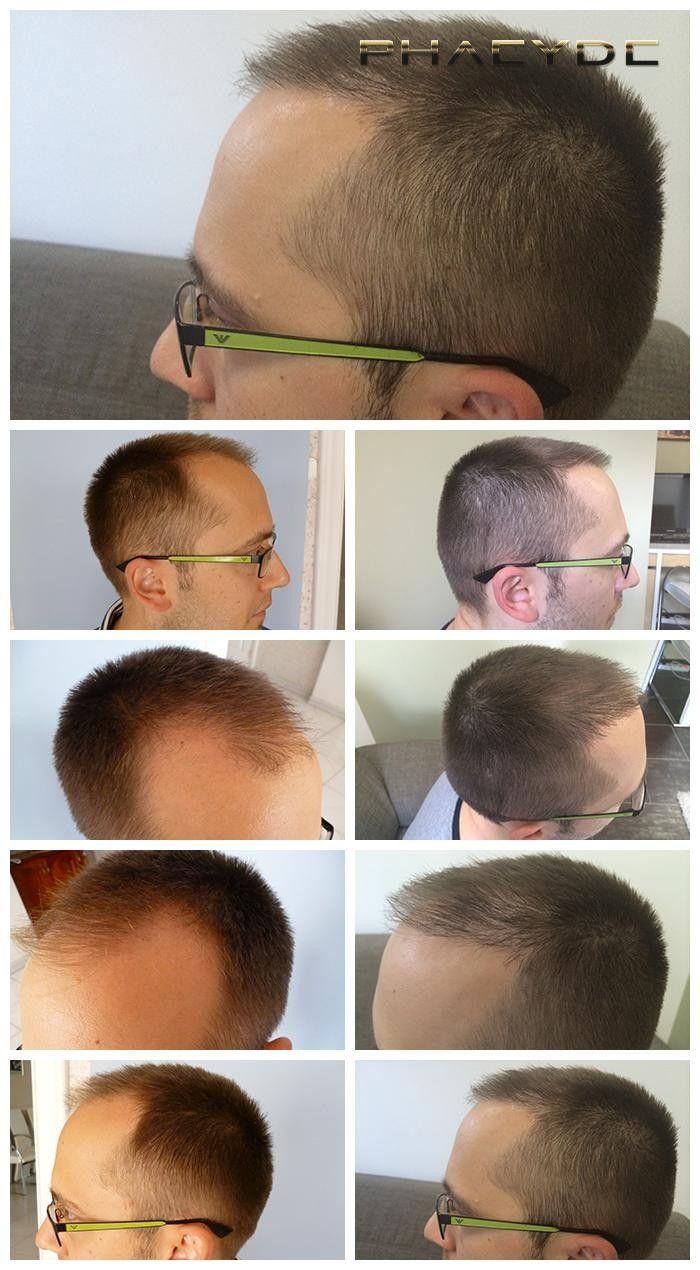Włosy implantu wyniki, Świątynia implantacji - PHAEYDE Klinika  AARON był łysy w jego świątynie, lub w strefach 1 i 2. Potrzebował więcej niż 4000 włosy to dobry wynik. Wykonane przez PHAEYDE kliniki.  http://pl.phaeyde.com/przywrocenie-wlosow