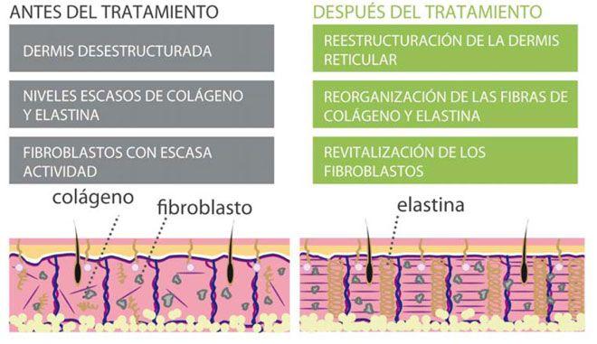 Resultados del tratamiento de Radiofrecuencia