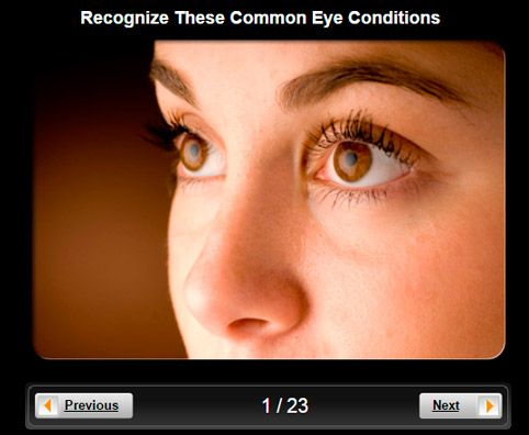 What are some common eye disorders and symptoms?