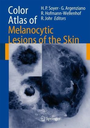 Color atlas of melanocytic lesions of the skin / H.P. Soyer ... [et al.] Berlin ; Heidelberg : Springer, cop. 2007
