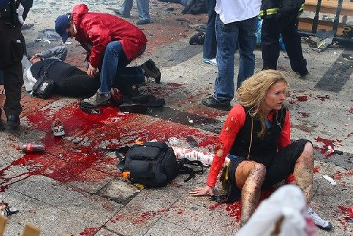 Boston Marathon very graphic pictures Click to view image: 'd67038ccdb57-29bb0065b88d124c7f73afde2c83d2ec.jpg'