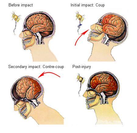Diffuse Axonal Injury - Google Search | Tramatic brain ...
