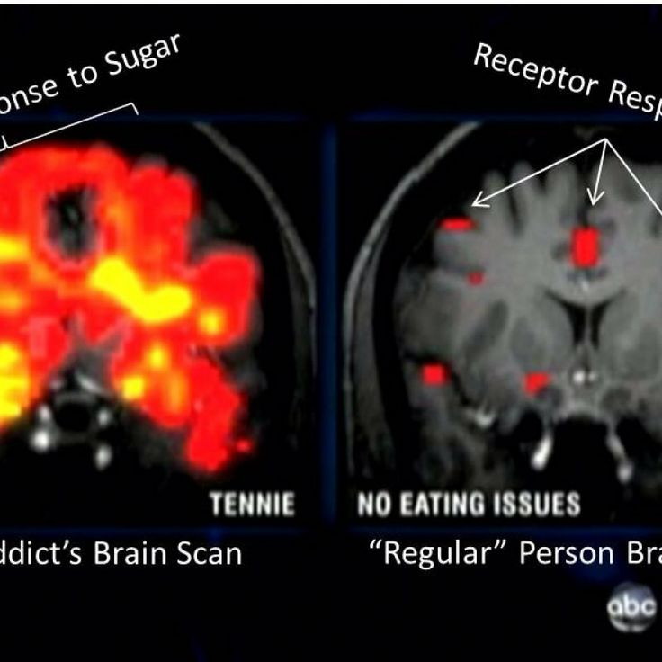 """addictive properties of sugar """"if bingeing on sugar is really a form of addiction, there should be  sugar is  addictive as a drug in the sense that they appear to use similar  important for  people to understand that sugar has a physically addictive property,."""