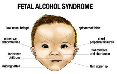 Fetal alcohol syndrome and facial characteristics